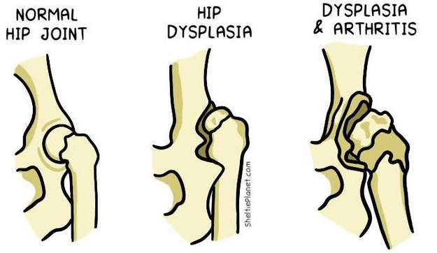 Hip Dysplasia Illustration