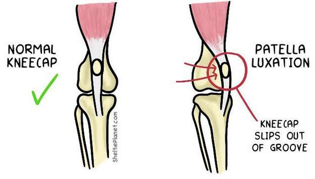 Patella Luxation Illustration